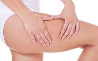 The Way to Get Rid of Cellulite