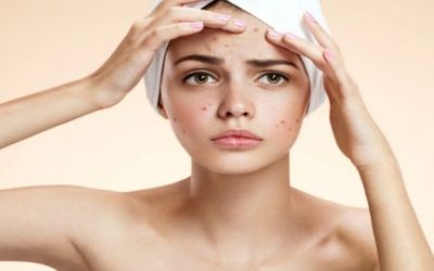 Wart Removal Remedies That You Can Try